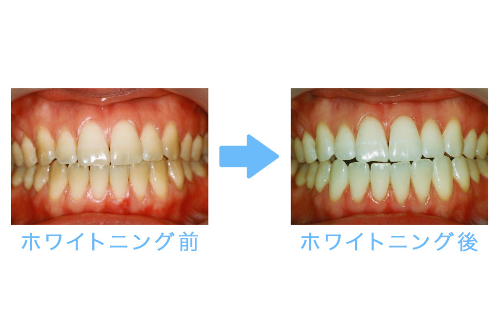whitening example1