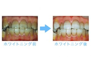 whitening grey teeth