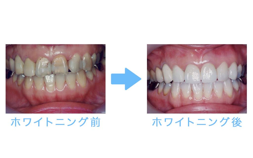 whitening prosthesis1