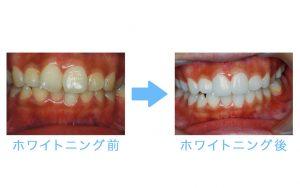 whitening prosthesis 5