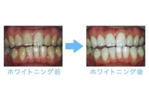 whitening steps before after
