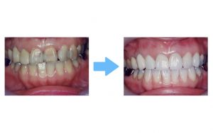 whitening with ceramic