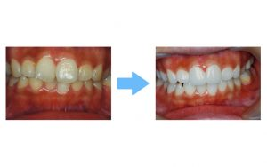 whitening with treatment
