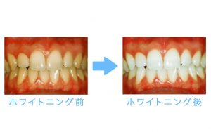 whitening yellow teeth